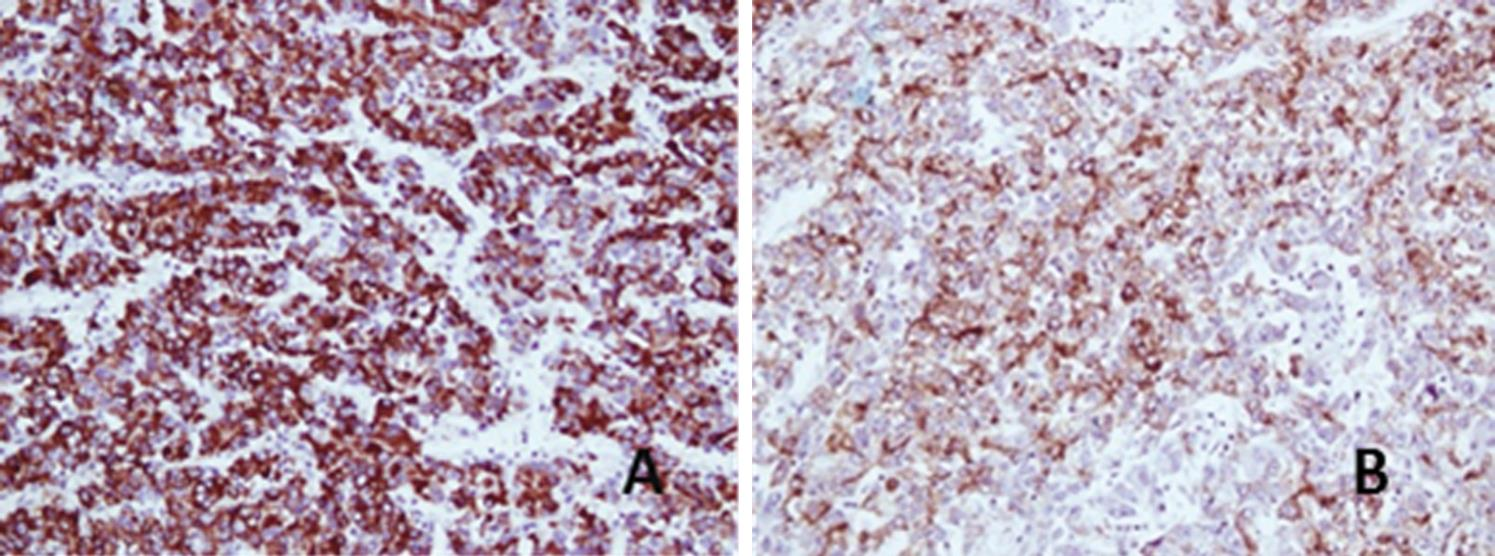 Immunohistochemistry showing a strong and diffuse cytoplasmic positivity with Hep Par 1 (A) and Glypican 3 (B), 200X.