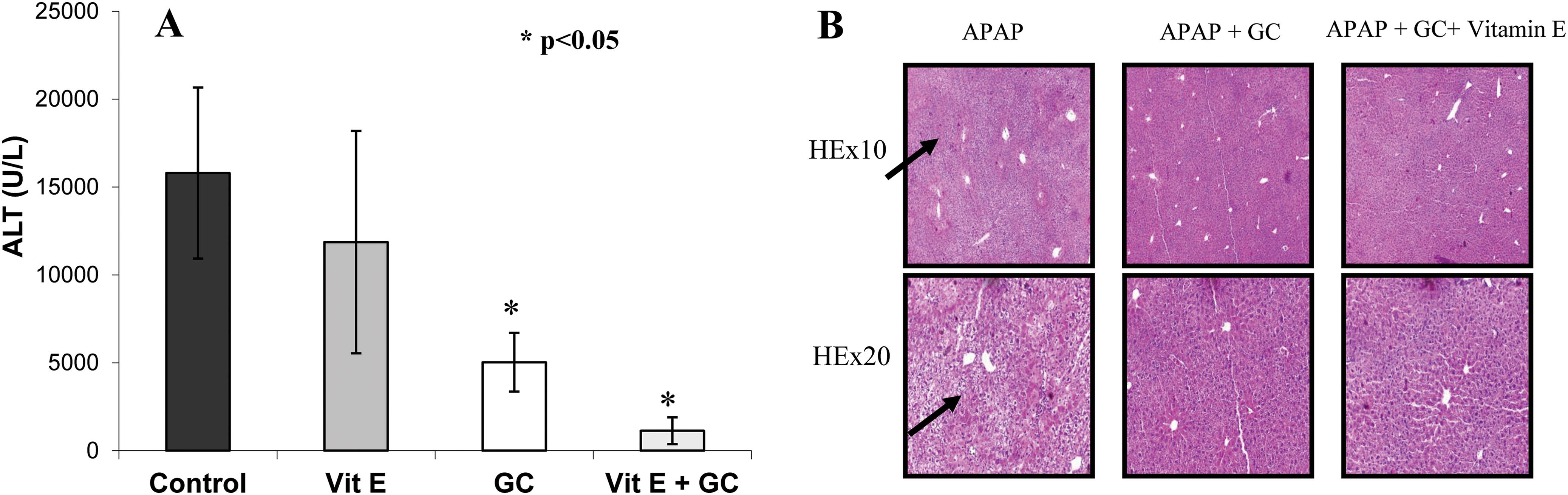 Synergistic effect of β-glucosylceramide with vitamin E on alleviation of the APAP-mediated liver damage.