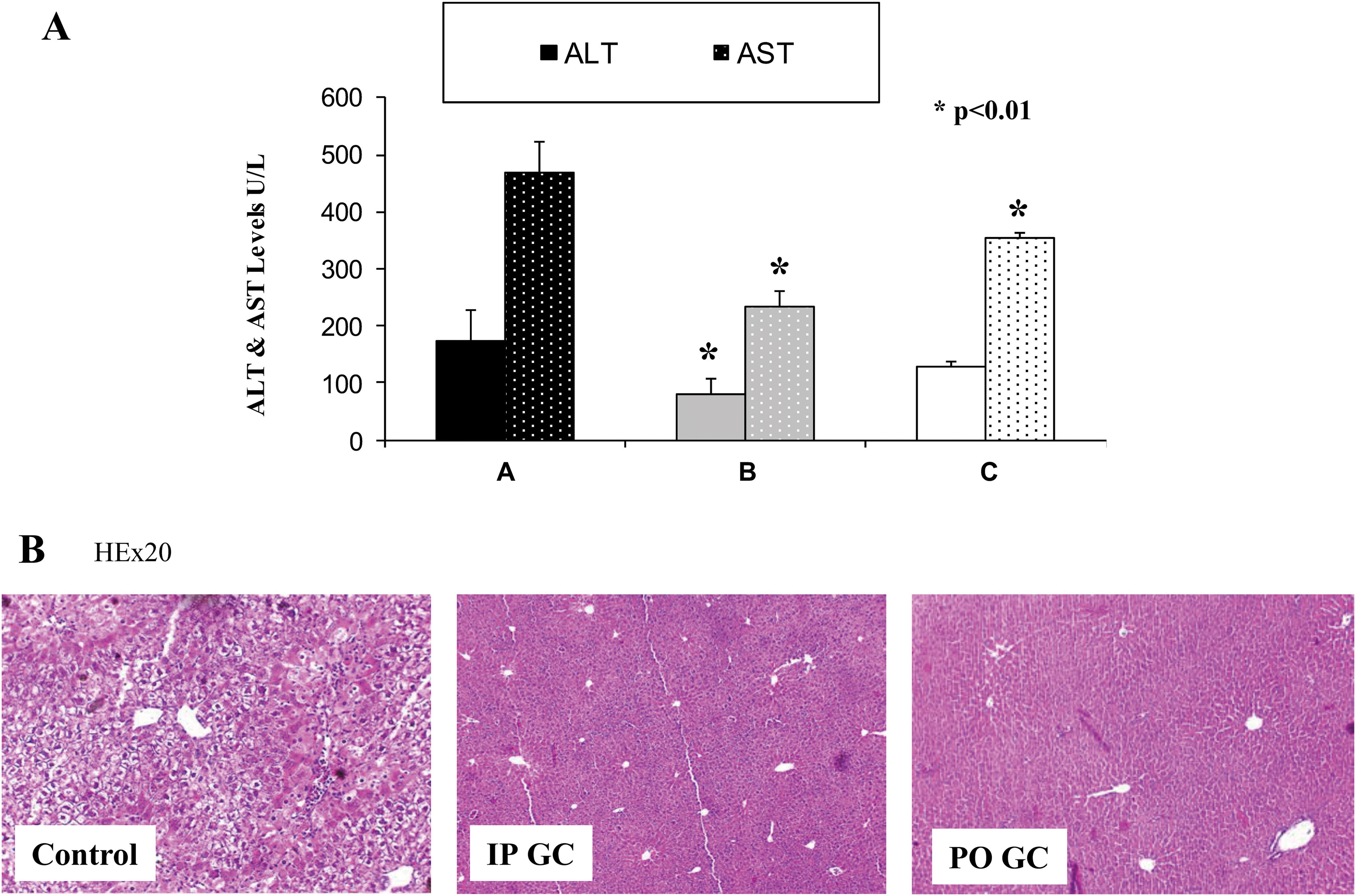 Protective effect of β-glucosylceramide from statin-mediated liver damage.