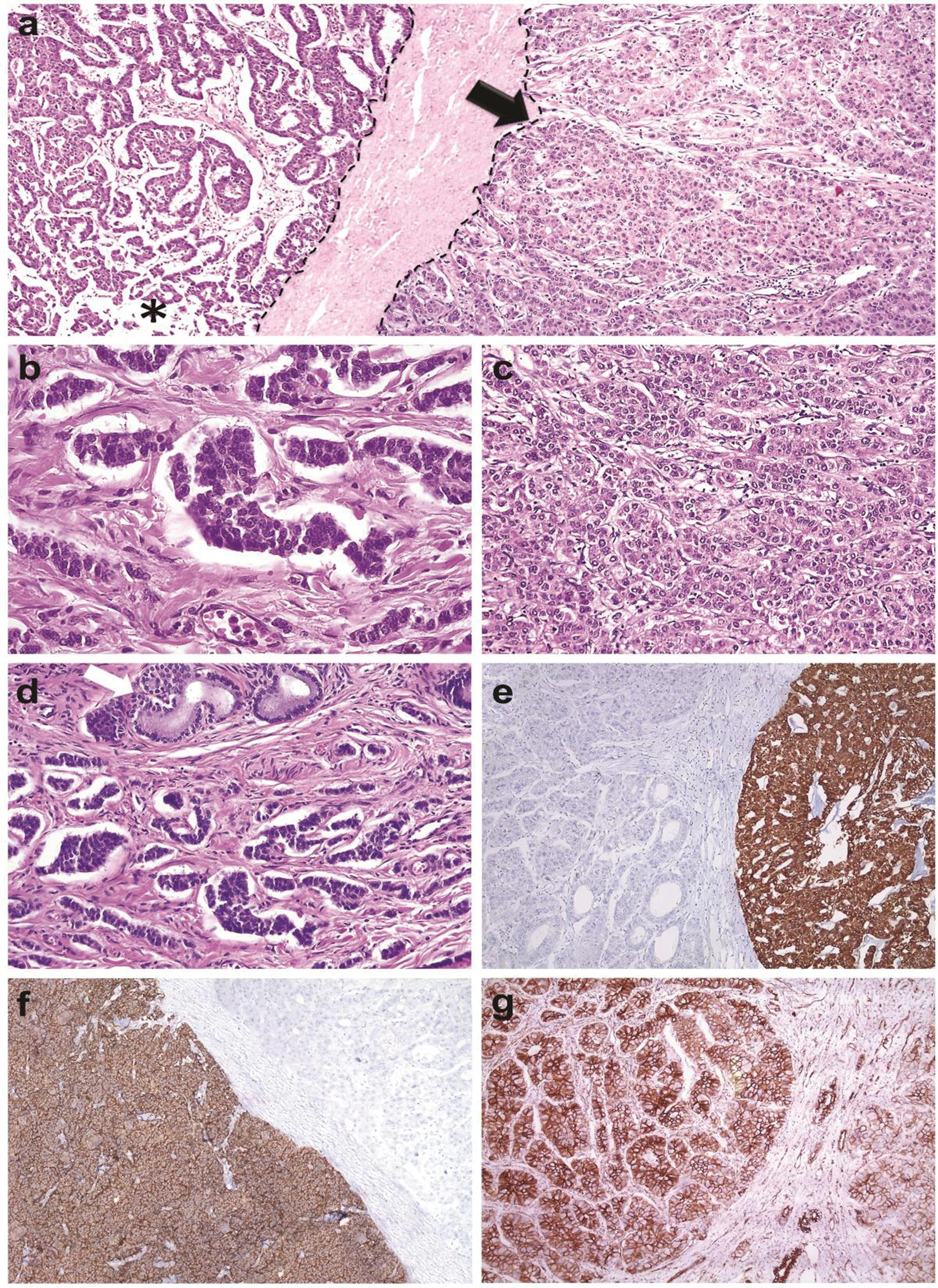 <bold>a:</bold> The two different components are separated by a fibrous tissue (tumor margins are highlighted by dotted lines). Hepatocellular carcinoma is indicated by the arrow; asterisk indicates NEC areas. <bold>b:</bold> Higher magnification of endocrine tumor. <bold>c:</bold> Higher magnification of HCC. <bold>d:</bold> NEC cells are closely located to near the ductus. <bold>e:</bold> NEC stains with chromogranin, but HCC remains negative. <bold>f:</bold> Hep-par 1 expression detected in HCC, but NEC is negative. <bold>g:</bold> Strong membrane staining with β-catenin in HCC.