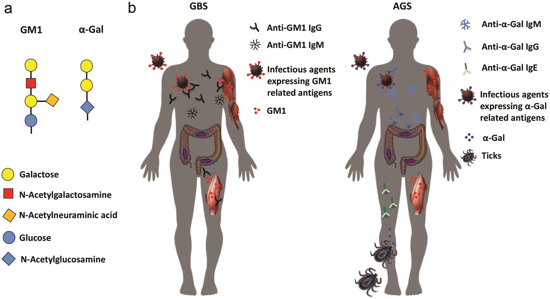 Immunological similarities between GBS and AGS.
