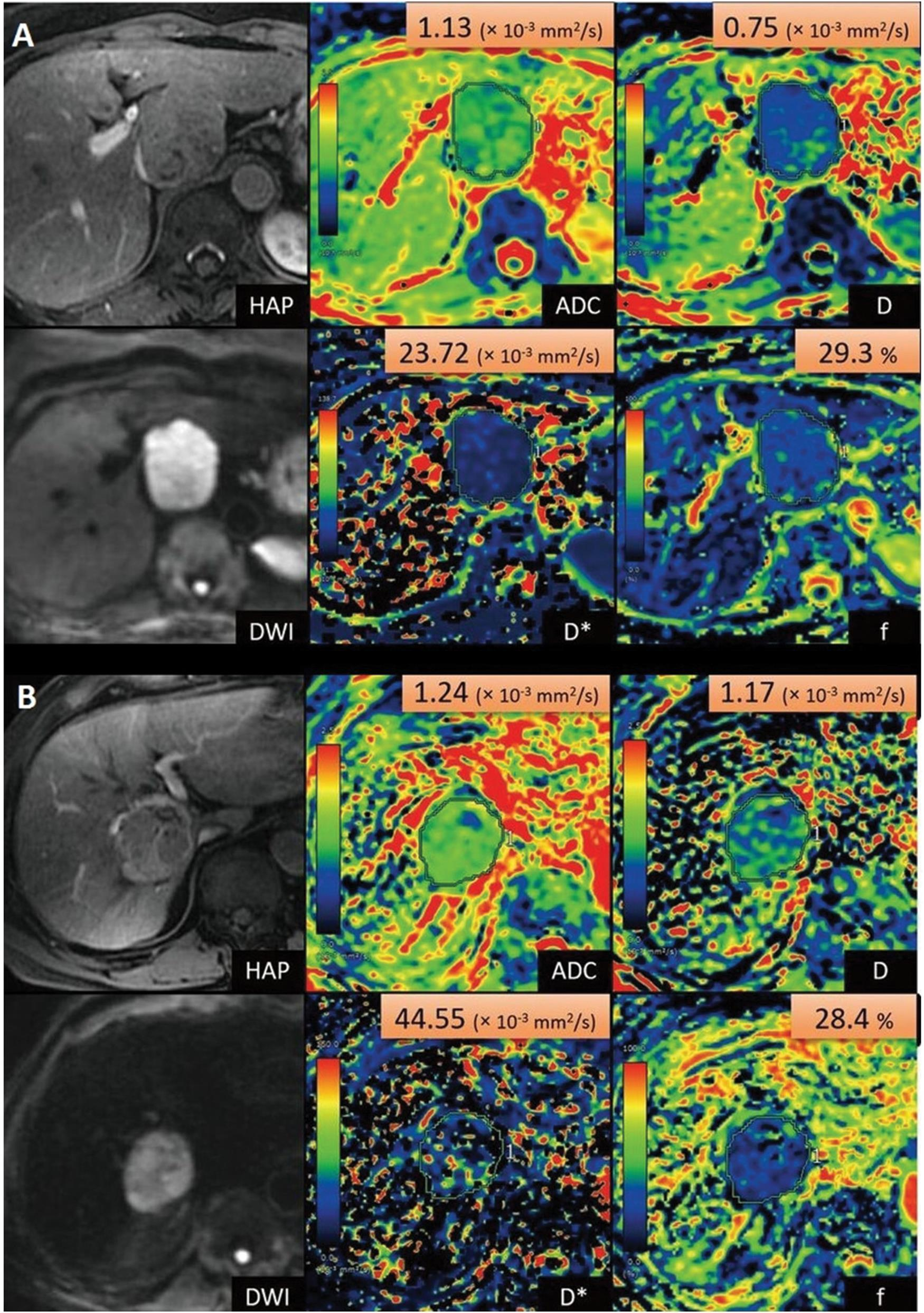 Intravoxel incoherent motion imaging of hepatocellular carcinoma.