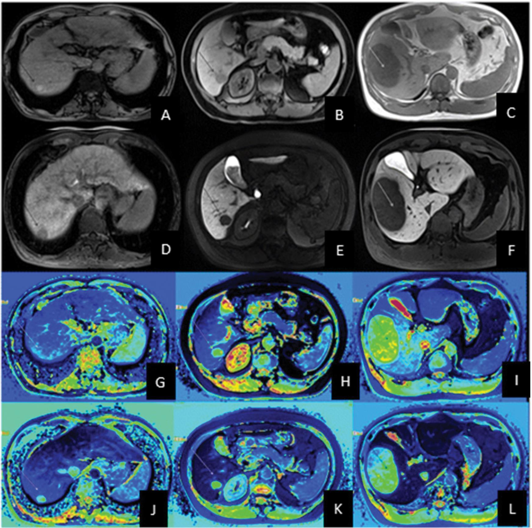 Magnetic resonance imaging of the abdomen of separate patients with low grade (column 1), intermediate grade (column 2) and high grade (column 3) hepatocellular carcinoma.