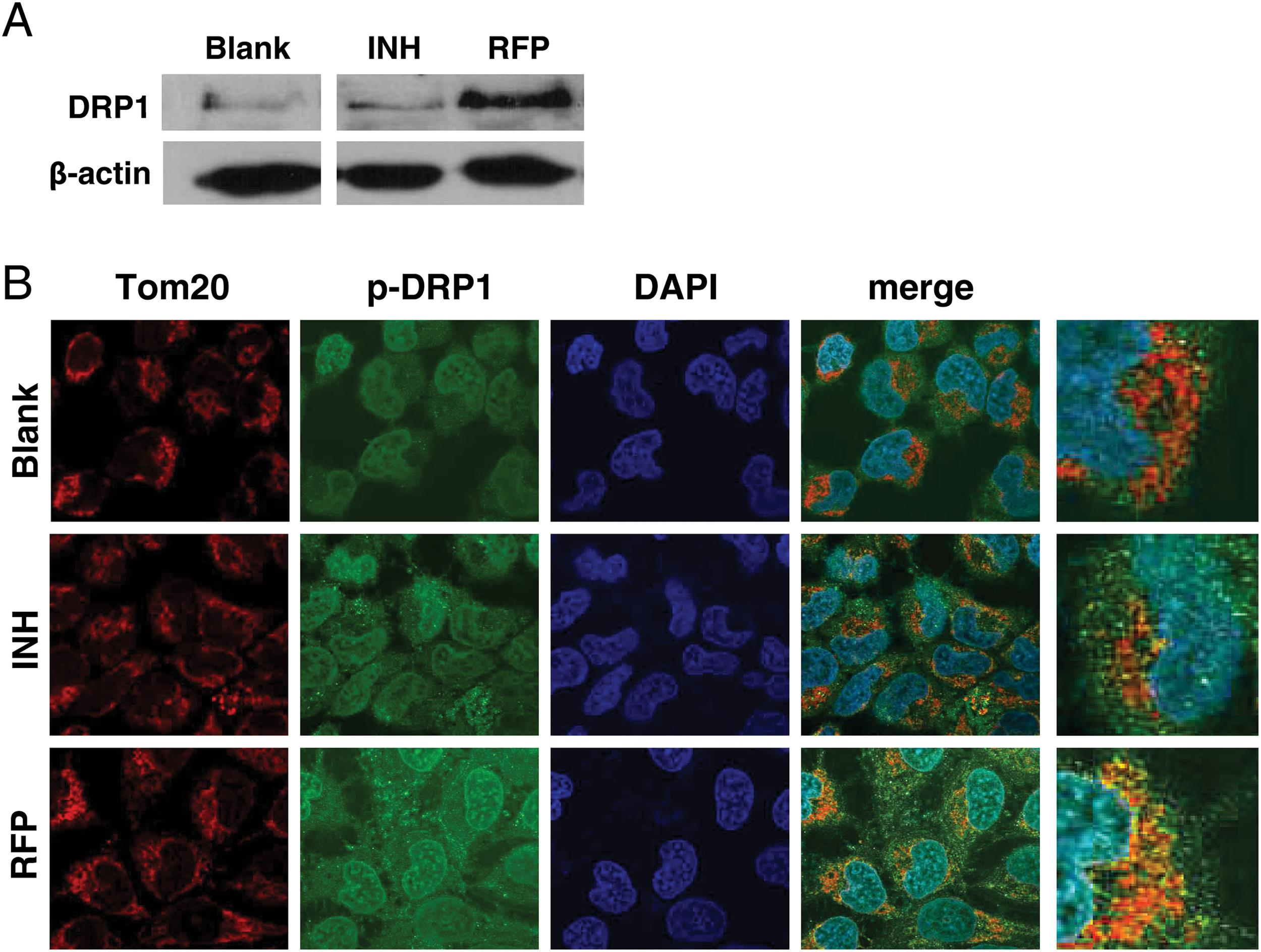 Effect of RFP and INH on the expression and activation of Drp1 in QSG7701 cells.