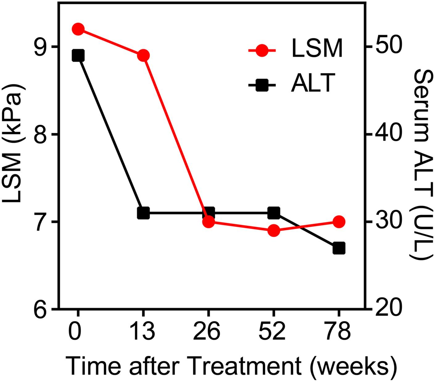 In longitudinal cohort LSM and alanine aminotransferase (median±interquartile range) level change during treatment with entecavir.