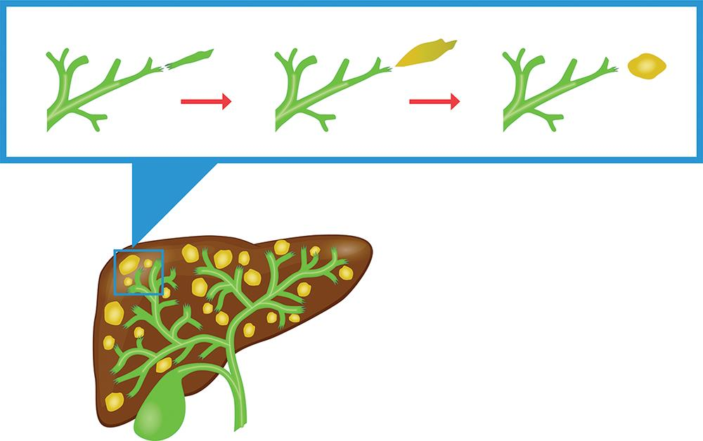 As the biliary tree is formed, the ducts undergo cycles of apoptosis and regeneration.