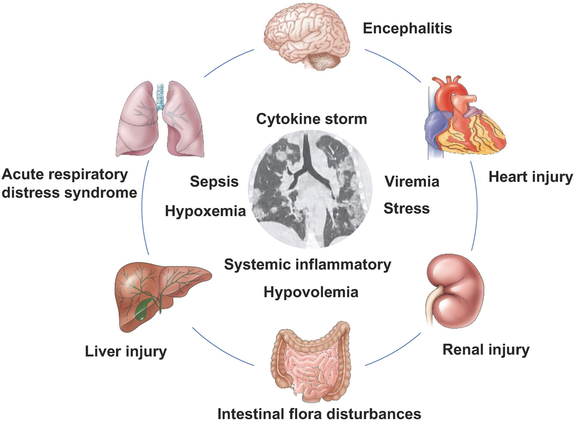 Complications and disease mechanisms in patients with 2019 coronavirus infection.