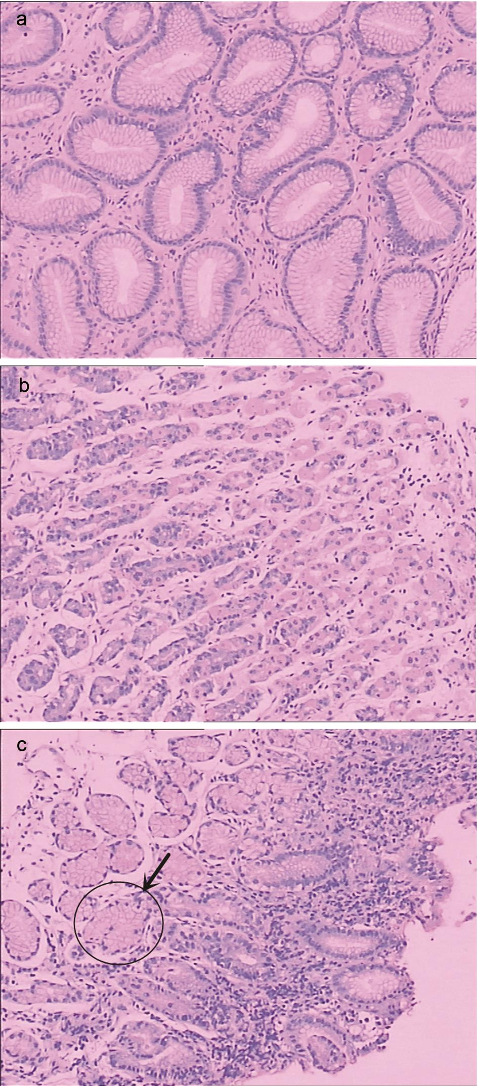 Gastric glands and antralization.