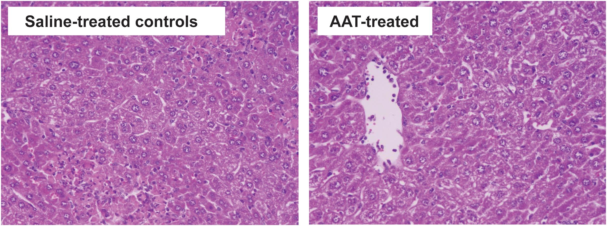 Effect of AAT on histology in the ConA-induced hepatitis model.