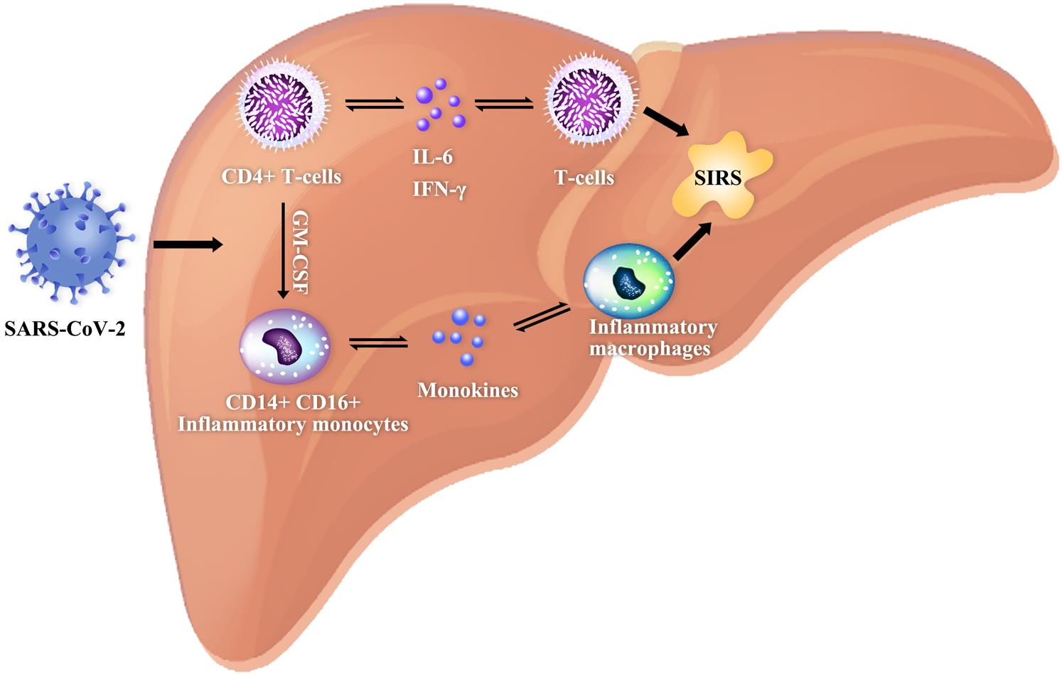 """<bold>Schematic diagram showing the systemic inflammatory response syndrome induced by SARS-CoV2.</bold> After the SARS-CoV-2 infection, pathogenic T cells are rapidly activated, producing granulocyte-macrophage colony-stimulating factor (GM-CSF), interleukin (IL)-6 and other proinflammatory factors. GM-CSF will further activate CD14<sup>+</sup>CD16<sup>+</sup> inflammatory monocytes, producing a larger amount of IL-6 and other proinflammatory factors, and thereby inducing an inflammatory """"storm"""" that leads to immune damage to other organs, such as the lungs and the liver. Both IL-6 and GM-CSF are two key proinflammatory factors that trigger the inflammatory """"storm"""" in patients with COVID-19."""